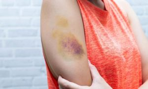 How To Make A Bruise Go Away With Mouthwash—And More